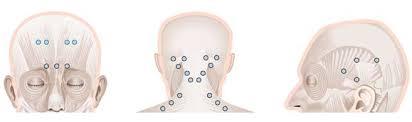 Figura 1. Puntos de aplicación de la toxina botulínica en caso de migraña crónica.