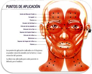 puntos-de-aplicacion-tratamiento-espasmo-hemifacial-toxina-botulinica