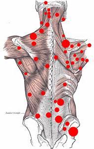 Figura No. 1 Puntos gatillos de la parte posterior del cuerpo en el síndrome miofascial.