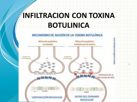 Fig. 2 Mecanismo de acción de la Toxina Botulínica.